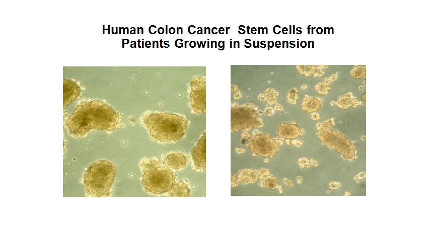 Image Result For Car T Cells Colon Cancer