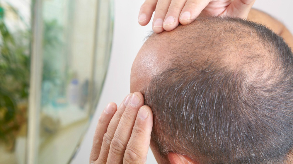 Progress In Stem Cell Treatment For Hair Loss Bioinformant