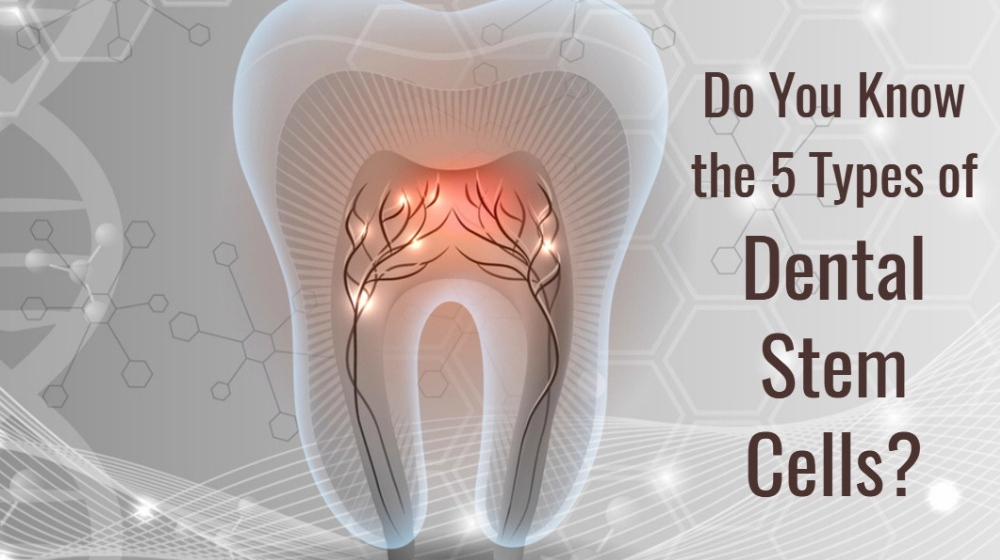 Feature | Dental Stem Cells | Do You Know the 5 Types of Dental Stem Cells